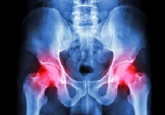 Hip Disorder Treatment at Joint & Spine Rehabilitation